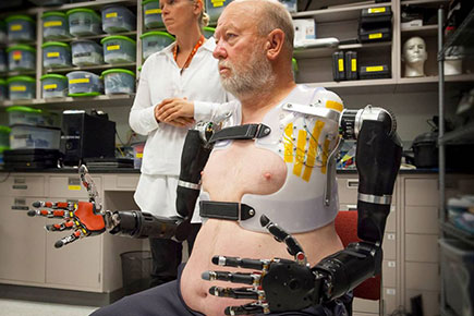 Thought Controlled Prosthesis Made Real?